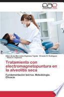 libro Tratamiento Con Electromagnetopuntura En La Alveolitis Seca